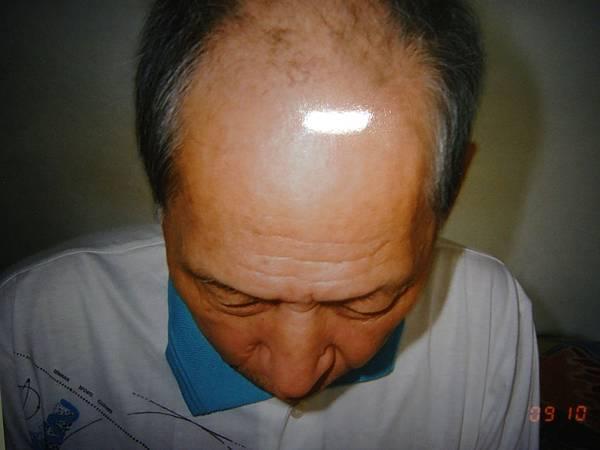 儕瑱台北會員生髮見證