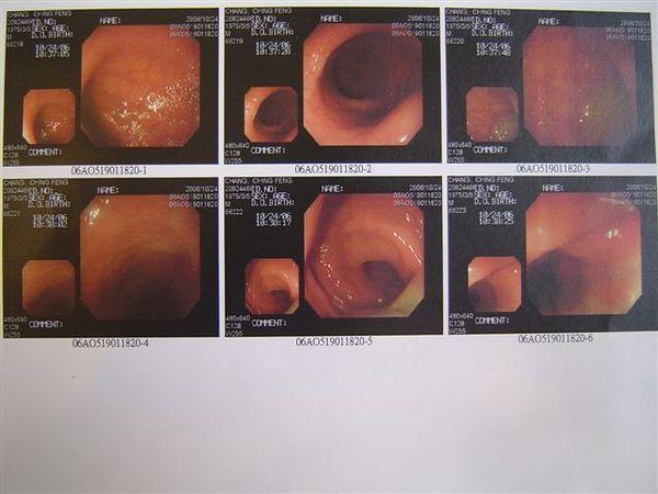 大腸鏡.jpg
