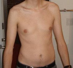 脂肪中肌肉低