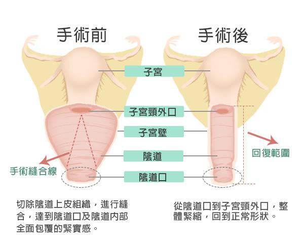 陰道緊縮術-示意圖600