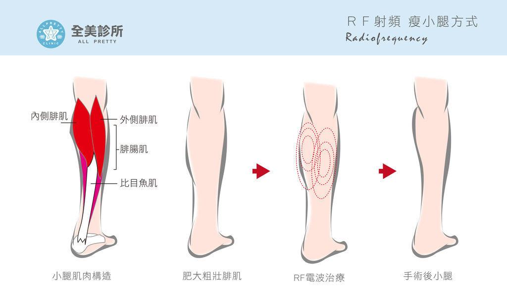 RF瘦腿-2.jpg