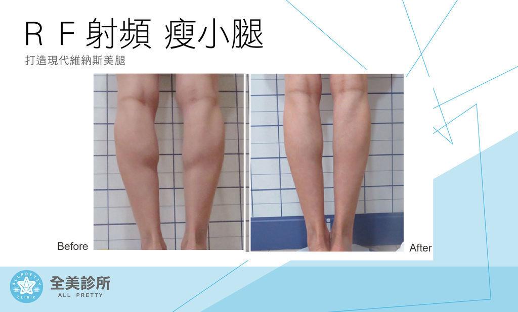 RF瘦腿-7.jpg