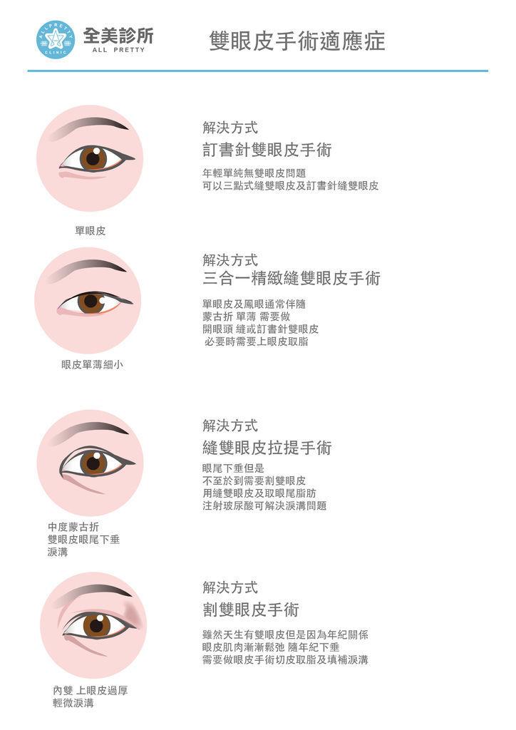 眼睛-3 拷貝.jpg