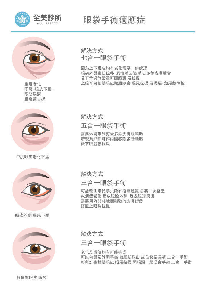 眼睛-1 拷貝.jpg