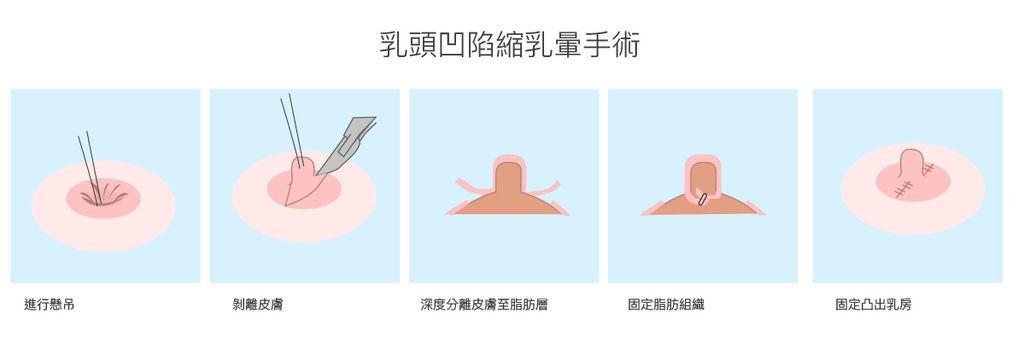 乳房乳頭-2凹陷.jpg