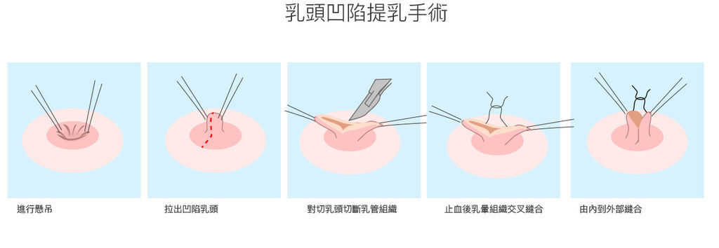 乳房乳頭-1.jpg