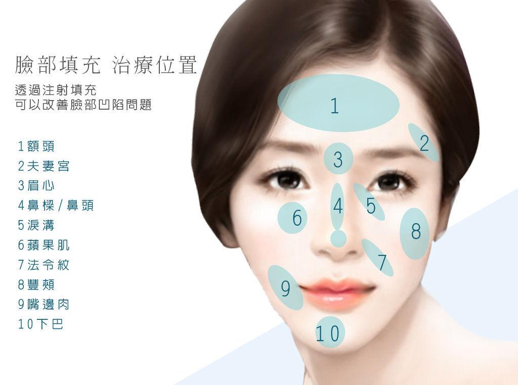 波尿酸隆鼻-2 拷貝.jpg
