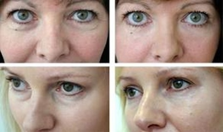 treatment-of-hollows-under-the-eyes.jpg