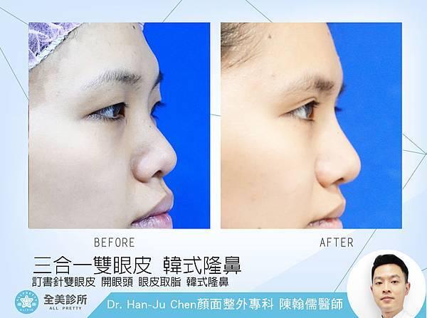 眼部手術+鼻整形 拷貝.jpg