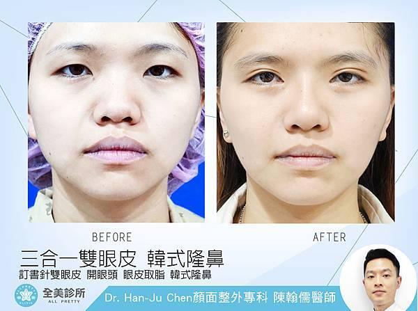 眼部手術+鼻整形拷貝.jpg
