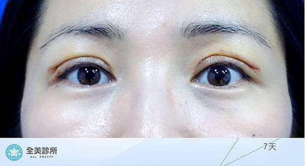許 訂書針雙眼皮+修皮-7.jpg