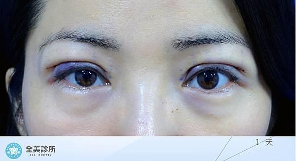 許 訂書針雙眼皮+修皮-1.jpg