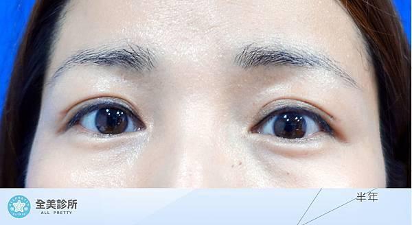 許 訂書針雙眼皮+修皮-6m.jpg