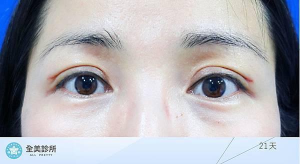 許 訂書針雙眼皮+修皮-21.jpg