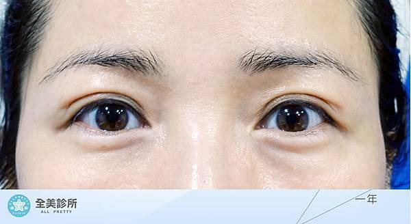 許 訂書針雙眼皮+修皮-1Y.jpg