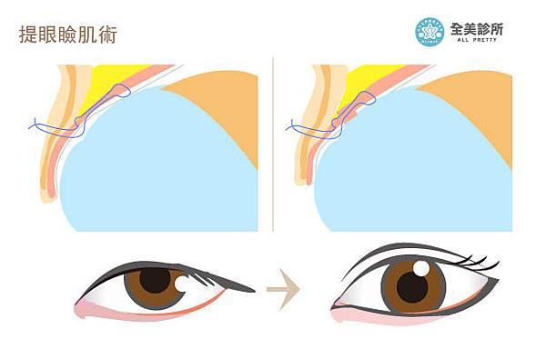 eye02-2.jpg