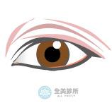 重瞼眼睛.jpg