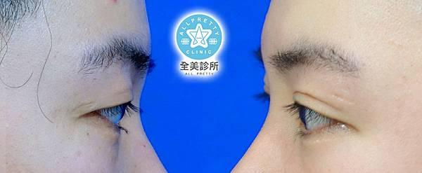 雙眼皮側面 拷貝.jpg