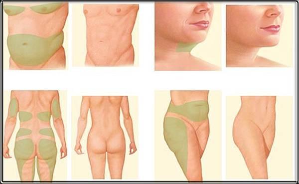 liposuction-ile-yaglarin-cekilmesi-zayiflama-yontemi.jpg