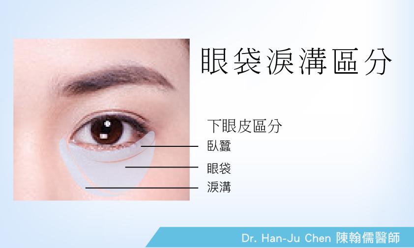 眼皮鬆弛2.jpg