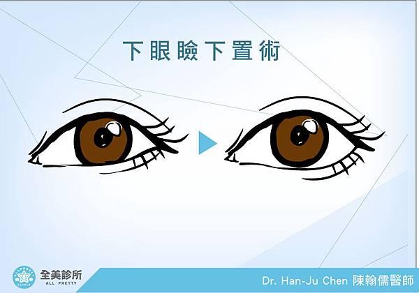 下眼瞼下置術2.jpg