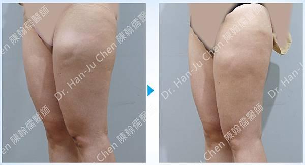 抽脂補胸+脂肪瘤-大腿抽脂-2020100704.jpg