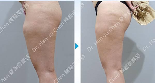 抽脂補胸+脂肪瘤-大腿抽脂-2020100702 (2).jpg