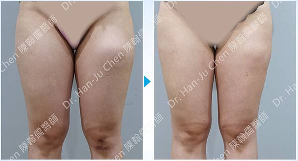 抽脂補胸+脂肪瘤-大腿抽脂-2020100702.jpg