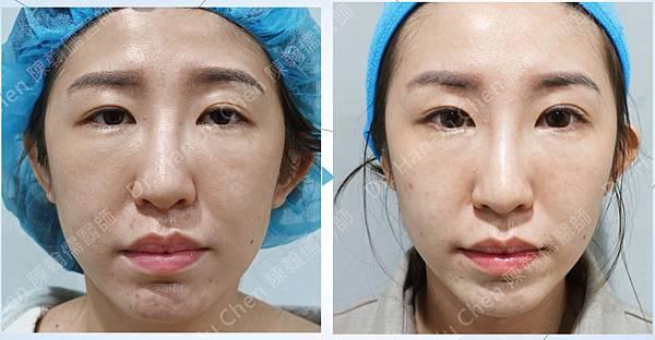 許庭臻--內視鏡-還有左側的縫式提眼肌手術-2.jpg