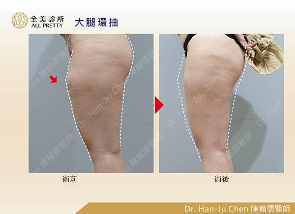 抽脂補胸+脂肪瘤-大腿抽脂-202010072.jpg