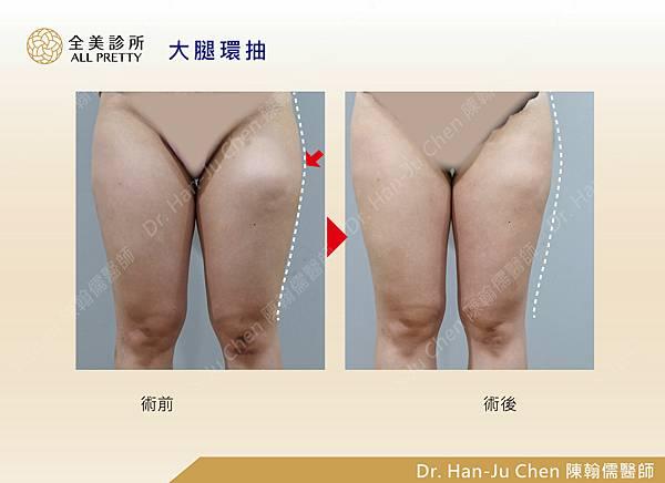 抽脂補胸+脂肪瘤-大腿抽脂-202010071.jpg