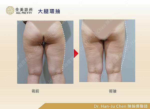 抽脂補胸+脂肪瘤-大腿抽脂-202010073.jpg