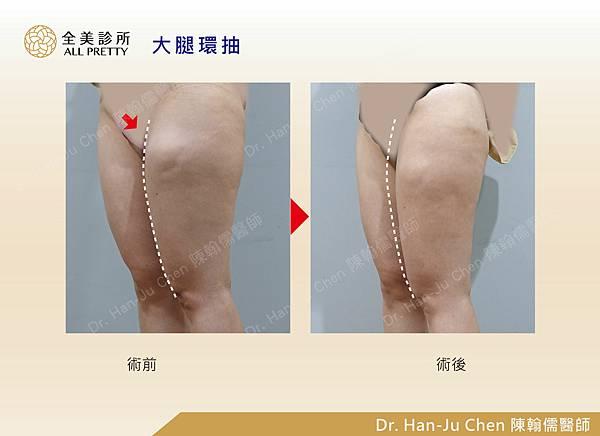 抽脂補胸+脂肪瘤-大腿抽脂-202010074.jpg