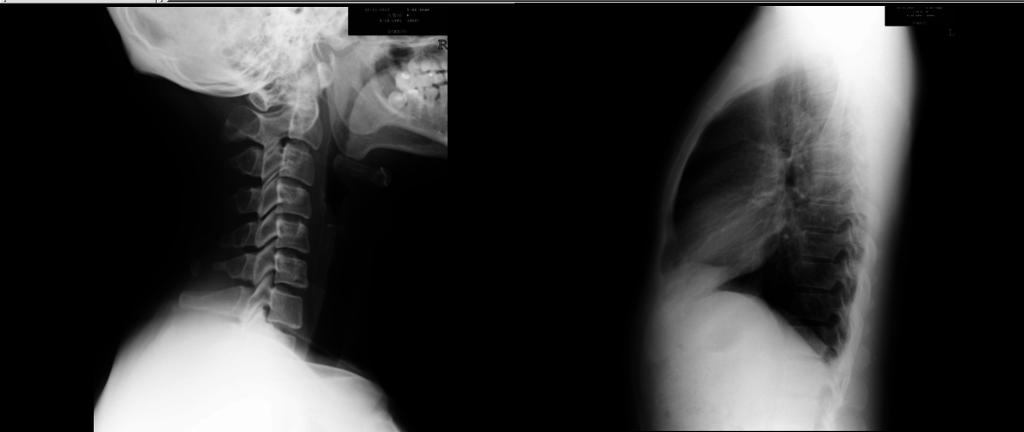 2013_10_11_頸椎X光片 - 複製