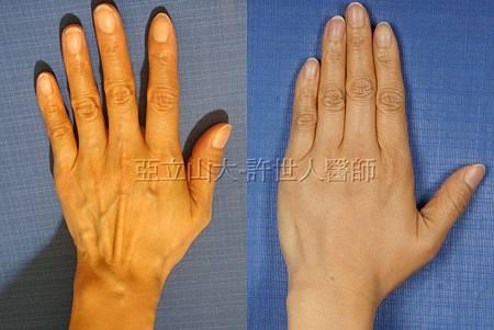 11.雞爪手整形