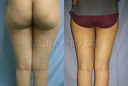 5.臀部和大腿環抽