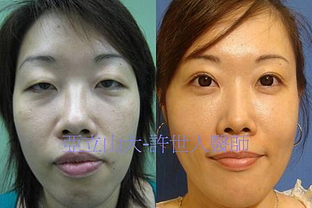 7.全臉脂肪注射回春