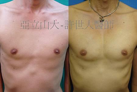 9.胸肌整形