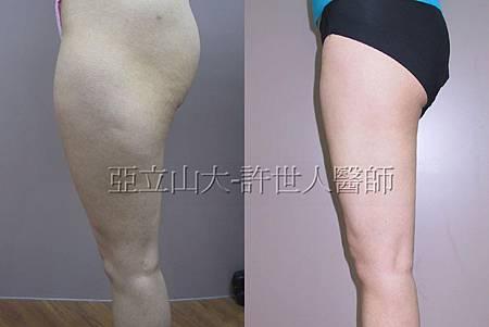 臀 大腿抽脂 (1).jpg