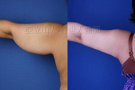 arm lipo2.jpg