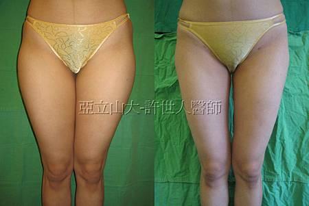 thigh3.jpg