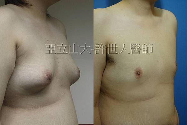 chest 1-1.jpg