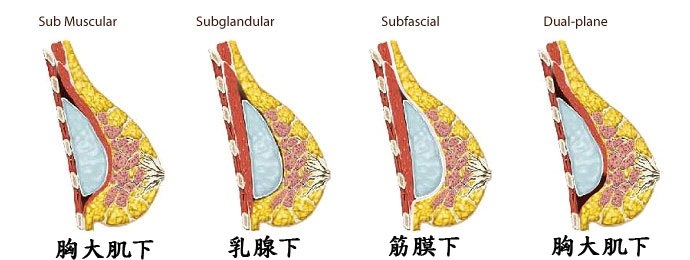 2 implant_placement_sites拷貝.jpg