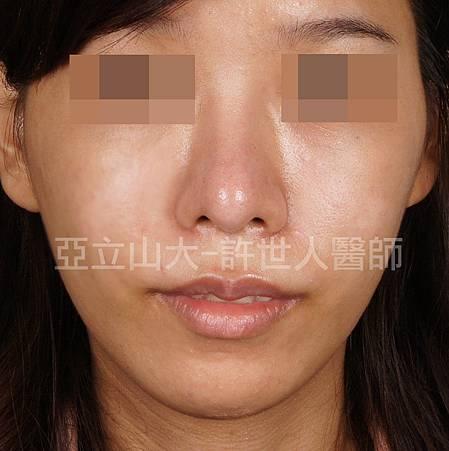 上唇及韓式鼻雕術後