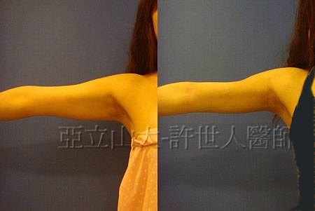 ARM 9