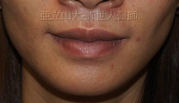 c微笑嘴唇和和墊下巴術後