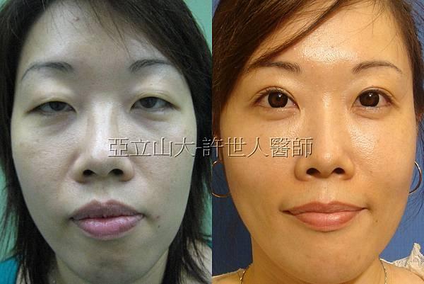 眼袋手術合併提眼瞼肌和雙眼皮手術