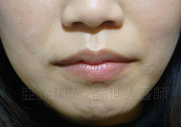 lip   a