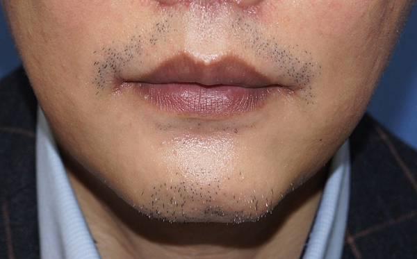 縮唇 + 下巴+抽脂  術後