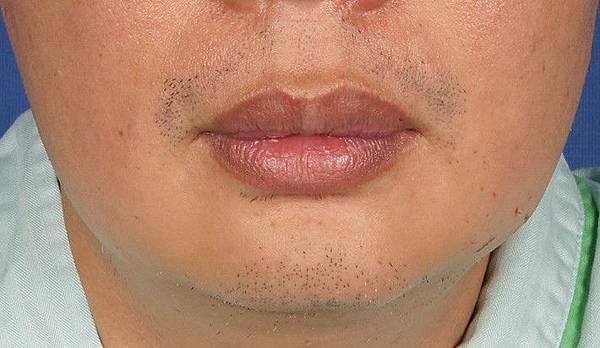 縮唇 + 下巴+抽脂  術前